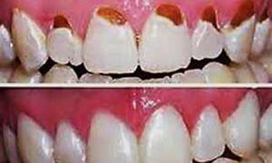 """موضوع دندانپزشکی: درمان های ترمیمی """"اینله"""" و """"اوونله"""" و پاسخ به سوالات"""