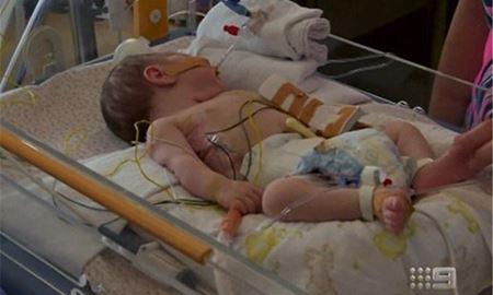 نجات معجزهآسای نوزاد ۱۳روزه پس از خارج کردن توده بزرگ در استرالیا