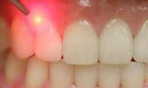 موضوع دندانپزشکی: کاربرد لیزر در دندانپزشکی و پاسخ به سوالات