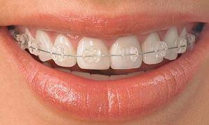موضوع دندانپزشکی: پاسخ به سوالات ...مشکلات مکیدن شست توسط کودکان /درخصوص ارتودنسی دندان/ ..همراه با دکتر مهرداد ابولقاسمی