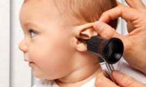 موضوع: عفونت گوش میانی در کودکان/پاسخ به سئولات همراه با دکتر بهمن منصور زاده ، پزشک خانواده در استرالیا