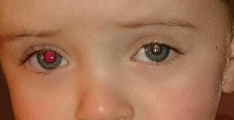 موضوع: رفلکس قرمز چشم/ همراه با دکتر بهمن منصور زاده ، پزشک خانواده در استرالیا / رادیو نشاط - رضا سمامی
