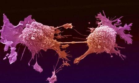 """استفاده از """"ویروسها"""" برای معالجه مبتلایان به """"سرطان"""" توسط محققان استرالیا"""