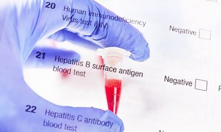 هپاتیت B،کشندهتر از مالاریا/کبد بر اثر هپاتیت B آسیب دیده و به نوعی سرطان کشنده منجر میشود