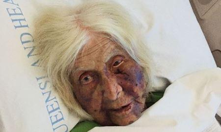 مردی که زن 92 ساله  ای را در استرالیا مورد ضرب و شتم شدید  قرار داده بود، به هفت سال زندان محکوم شد.