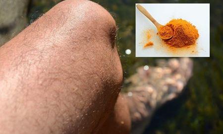 استفاده از زردچوبه برای بهبودی درد آرتروز مفصل زانو